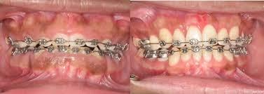 gums growing over braces