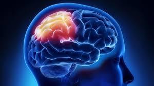 Image result for stroke images