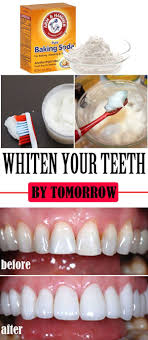 top 5 teeth whitening home remes