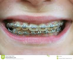 Brackets On Teeth Stock Image Image Of Medicine Happy 1013755