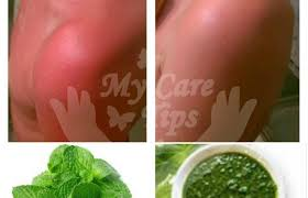 Skin allergy treatment at home in urdu for clear skin - My Care Tips