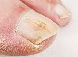for toenail fungus