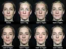 Kosmetik pigmentflecken gesicht