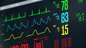 Normal vital signs on bedside ICU monitor patient stable after heart  surgery Stock Video Footage  VideoBlocks