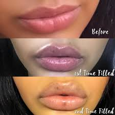 my second time getting lip fillers