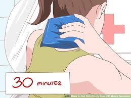 5 Ways to Get Rid of Itchy Skin with Home Remedies - wikiHow