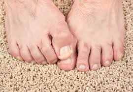 how you can stop foot and toenail fungus in its tracks