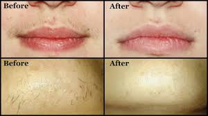 remove unwanted upper lip hair chin hair by yourself easily at home mamtha nair