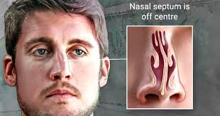Image result for deviated septum
