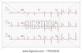 Heart Cardiogram Vector Photo Free Trial Bigstock