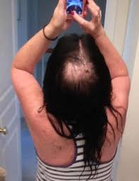 Image result for atypical60 hair loss