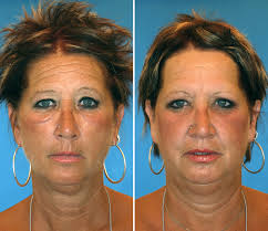 Effects Of Smoking Sun And Stress On The Skin Of Twins