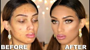 makeup transformation full face acne covering makeup tutorial