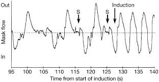 Comparison of pattern of breathing with other measures of induction of  anaesthesia, using propofol, methohexital, and sevoflurane - ScienceDirect