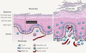 Tratamiento Psoriasis