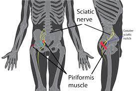 Piriformis syndrome - Wikipedia