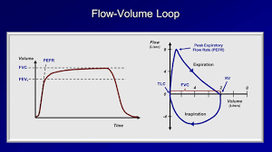 Flow Volume Chart Pulmonary Function Tests Pft Lesson 2 Spirometry