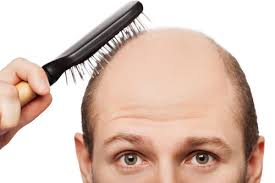 Image result for bald spot