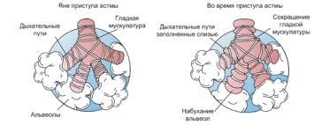 Бронхиальная астма Википедия Воспаление и обструкция дыхательных путей при астме Бронхиальная обструкция способствует появлению хрипов