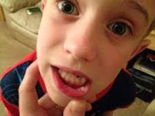 bit lip split lip how to treat mouth