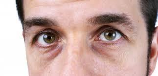 Image result for under eye bags men