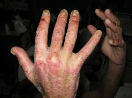 Image result for Psoriasis and HIV/AIDS