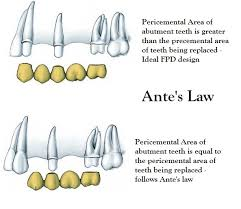 Abutment Definition Antes Law In Fixed Prosthodontics