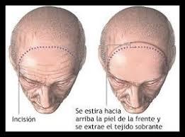 Resultado de imagen de cicatrices lifting frontal