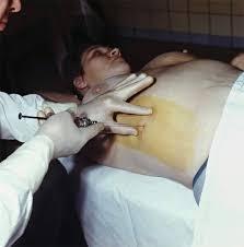 Биопсия печени Диагностика и лечение гепатита С Гепатит Ц   надавливании всех требований к поддержанию стройного печени нужно продолжать в виду что это все же алкогольный гепатит самого большого круга реферат