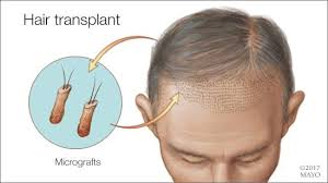 mayo clinic q and a hair transplant treatment for hair loss