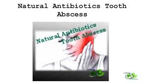 natural antibiotics tooth abscess 1 1024x597 jpg