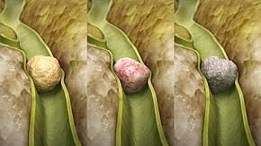 gallbladder structure साठी इमेज परिणाम