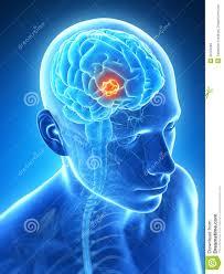 Znalezione obrazy dla zapytania rak mózgu zdjęcia
