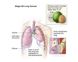 Classification Of Covering And Lining Membranes Complete The Following Chart Non Small Cell Lung Cancer Program In Cleveland Oh
