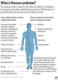 What is Havana Syndrome, Symptoms and ...