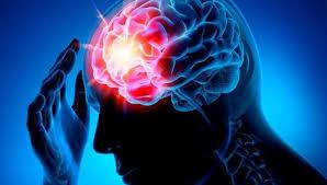 Дипломная работа реабилитация после инсульта Чем отличается инфаркт головного мозга от инсульта