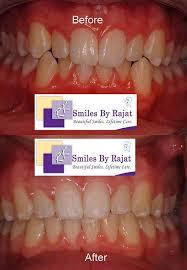 teeth straightening treatments in delhi teeth straightening surgery in india cosmetic teeth straightening surgery