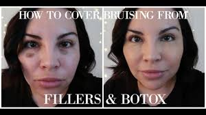 how to cover bruising from fillers botox