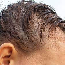 anemia iron deficiency and hair loss