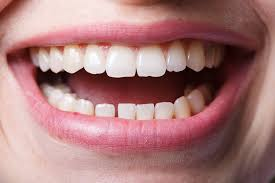 dentistry mouth and teeth close up smiling