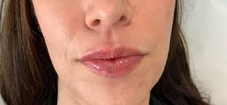 dermal fillers and vascular occlusion