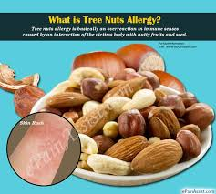 Tree Nuts Allergy|Causes|Symptoms|Treatment|Prevention|Prognosis