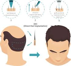 dht direct hair transplantation dhi direct hair implant technique used in