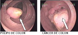 Resultado de imagen para detección del cáncer colorrectal
