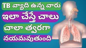 Tb In Telugu Tb Treatment In Telugu How To Cure