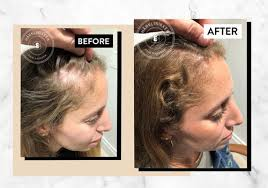 scandinavian hair growth system