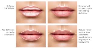 5 ways to love your lips with filler