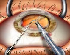 Phacoemulsification Cataract Surgery In Bhiwani Dhir Hospital Id