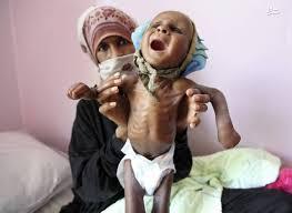 Image result for وضعیت بحرانی 11 میلیون کودک یمنی به روایت سیانان