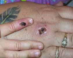 Case of monkeypox confirmed in Texan ...